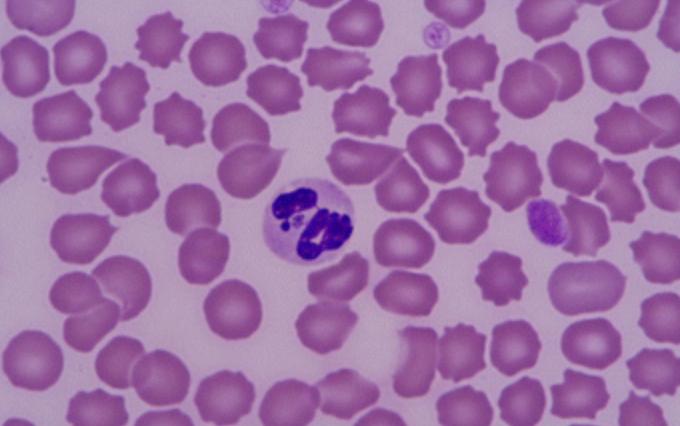 batterio anaplasma
